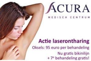 actie-laserontharen